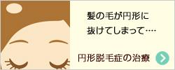 円形脱毛症の治療